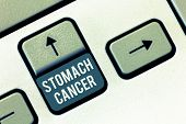 Writing note showing Stomach Cancer. Business photo showcasing Malignant tumor of the stomach that starts at the lining poster