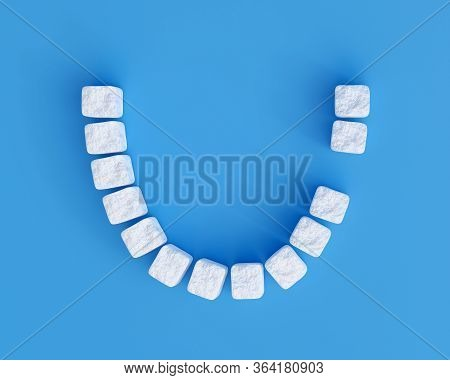 Teeth Made Of Sugar Cubes On Blue Background, One Tooth Missing. Sweet Tooth Dental Health Care Conc