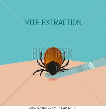 How To Remove Mite Insect Parasitic. Encephalitis Tick Warning Sign.