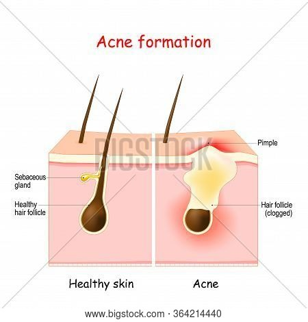 Acne. Inflamed Pimple On The Skin. The Sebum In The Clogged Pore Promotes The Growth Of A Bacteria.