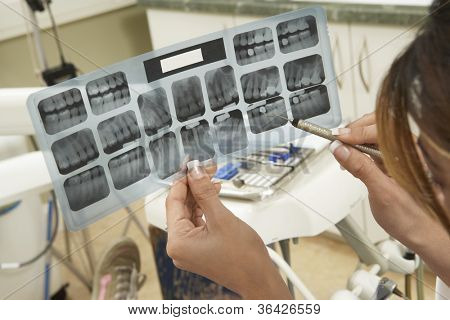 Woman examining patient's tooth x-ray report at clinic poster