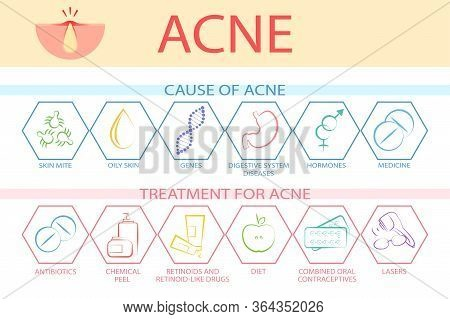 Problems Of Acne On The Face And Treatment. Causes Of Acne And Acne Treatment. The Emergence And Tre