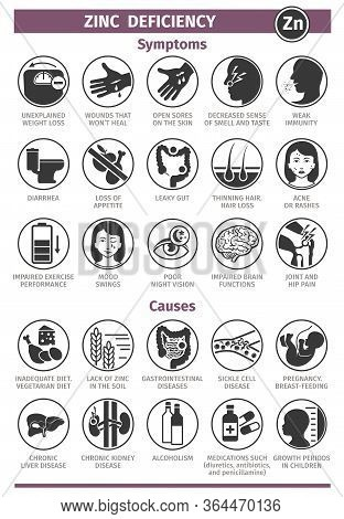Symptoms And Causes Of Zinc Deficiency. Icon Set. Template For Use In Medical Agitation. Vector Illu