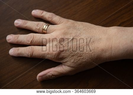 Old Female Hands Full Of Freckles And Wrinkles. Aging Concept