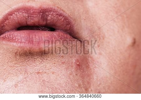 Mature Woman Showing Her Face With Acne And Moles. Adult Female No Make Up With Red Spots On Her Chi