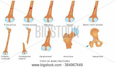 Types Of Bone Fractures. Different Kinds Of Fractures. Descriptive Illustration With Examples Of Fra