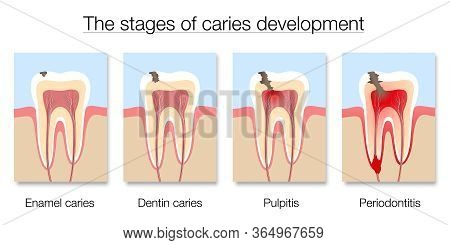 Caries Stages Chart, Development Of Tooth Decay With Enamel And Dentin Caries, Pulpitis And Periodon
