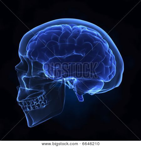 Left View Of Human Skull And Brain