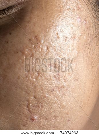 Women with closeup problematic skin and acne scars