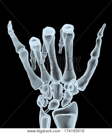 X-ray Hand Making Hangloose Gesture
