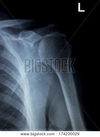 Shoulder Back Ribs Xray Scan