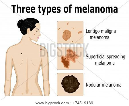 Three types of melanoma that for example located on the back and face of the woman poster