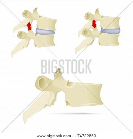 Spine, lumbar vertebra. Facet syndrome, advanced uncovertebral arthrosis, degenerative changes in lumbar vertebra, vertebral bone, lateral view. Flat style, vector illustration.