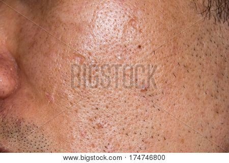 Close up Acne Acne holes welded on face