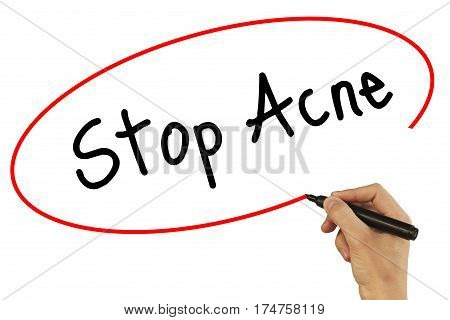 Man Hand Writing Stop Acne With Black Marker On Visual Screen. Isolated On Background. Business, Tec