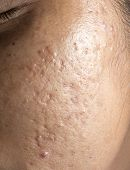 Women with closeup problematic skin and acne scars poster