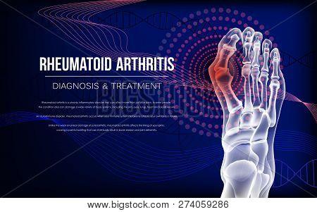 Rheumatoid Artritic Sore Joints Concept. Realistic Bones Of Foot Skeleton Of Human Leg. Horizontal D