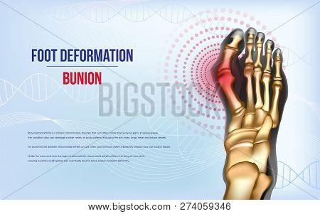 Foot Deformation Bunion. Sore Joints Concept. Realistic Bones Of Foot Skeleton Of Human Leg. Horizon
