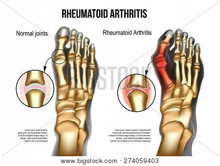 Realistic Skeleton Of Human Leg With Bones Of Foot Normal And Rheumatoid Artritic Sore Joints, Top V