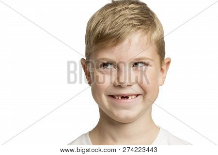 Cute Little Boy Without Anterior Teeth Laughing, Close-up, Isolated On White Background