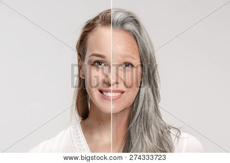 Comparison. Portrait Of Beautiful Woman With Problem And Clean Skin, Aging And Youth Concept, Beauty