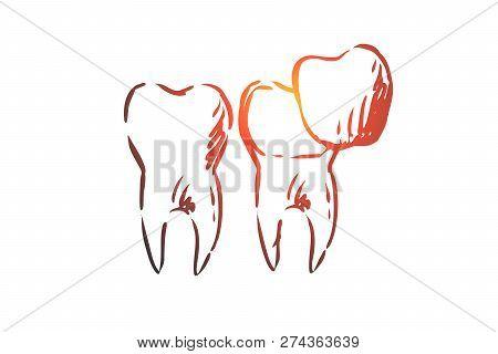 Veneer, Dental, Care, Dentistry, Whitening Concept. Hand Drawn Veneers For Teeth Treatment Concept S
