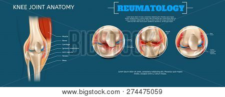Realistic Banner Illustration Knee Joint Anatomy. 3d Vector Reumatology Image Constituent Elements S