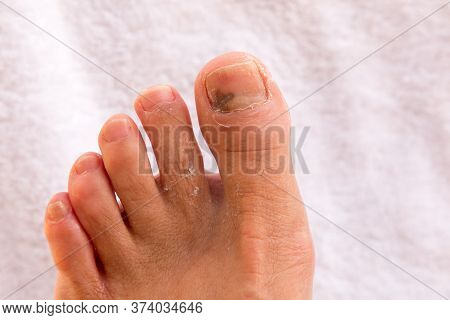 Big Toe That Was Broken Now Mending With Bruise On The Toe Nail.