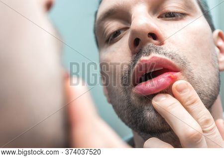 Unshaven Man Looks In Mirror At Sore Lip With Cold Sore Or Herpes Virus. Facial Inflammation, Dermat