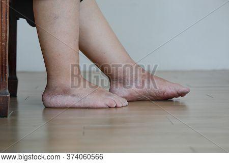 Senior Woman Has  Swollen Feet And Leg