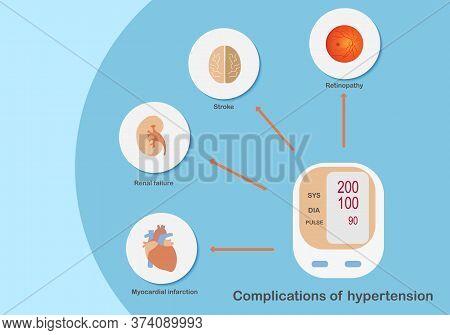 Complications Of Hypertension Affecting Organs. Illustration Of Digital Pressure Gauge, Brain, Kidne