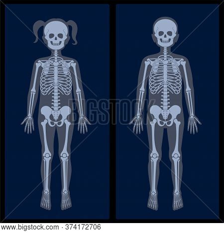 Human Girl And Boy Skeleton Pain, Fracture Or Inflammation On X Ray View. Vector Isolated Flat Illus