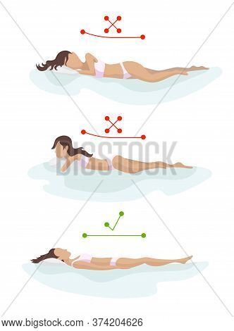 Correct And Incorrect Sleeping Body Posture. Position Spine In Various Mattresses. Orthopedic Mattre