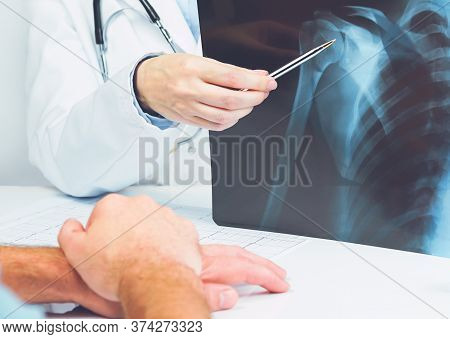 Female Doctors Hand Pointing At X-ray Medical Imaging With A Shoulder Condition. Bone Health, Imping