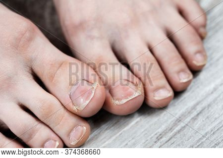 Ugly Toes Of A Girl With A Fungus And Ingrown Toenails