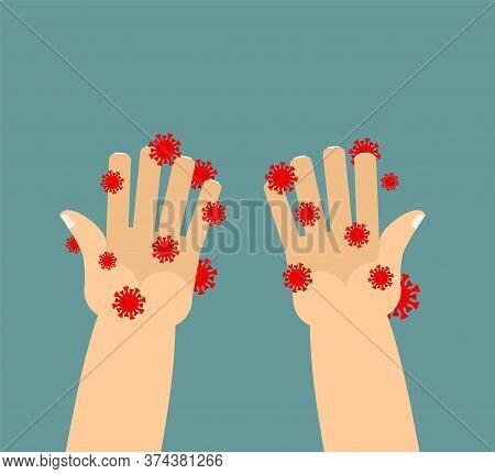 Coronavirus On Hand. Dirty Hands. Infected Fingers. Red Bacteria Of Virus Covid-19.