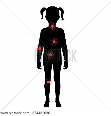Set With Flat Vector Isolated Illustration Of Pain And Inflammation In Child Girl Body. Black Silhou