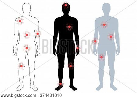 Flat Vector Isolated Illustration Of Pain And Inflammation In Male Body. Black, Grey And Transparent