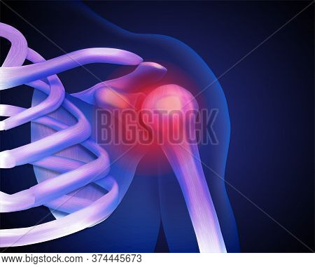 Inflammation Of The Human Shoulder Joint. Vector Illustration.