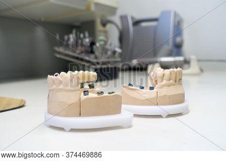 Zirconia Dental Crowns On Dental Models In The Dental Laboratory