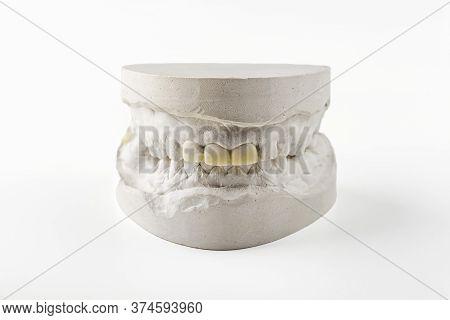 Stomatologic Plaster Cast, Molds Of Human Jaws And Teeth On White Background. Dental Casting Gypsum