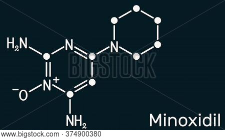 Minoxidil Molecule. It Is An Antihypertensive Vasodilator Medication, Is Used To Treat Hair Loss. St
