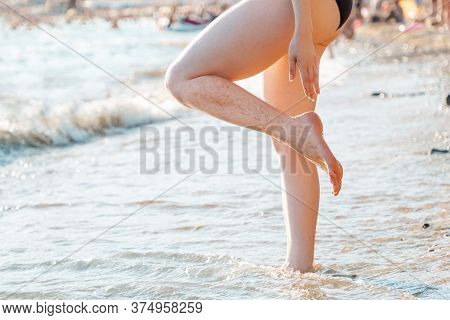 Varicosity. The Woman Stands In The Sea Up To Her Ankles And Demonstrates The Vascular Netting On He