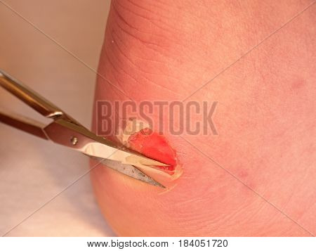Scissors Cut Dry Skin At  Cracked Bloody Blister On Heel. A Very Painful Place With Torn Skin