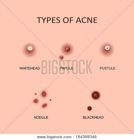 Types of acne, pimples. Vector illustration flat design