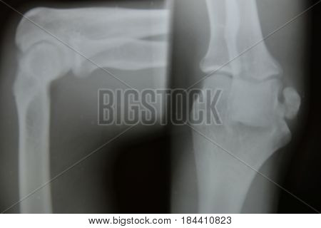 Close Up Bone  X-ray Medical
