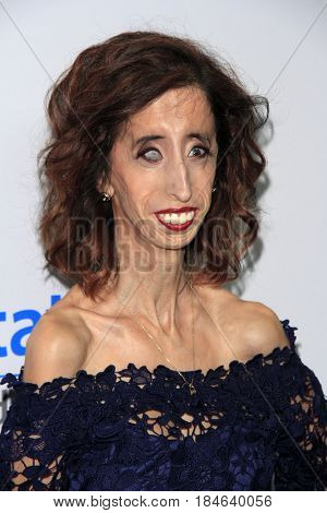 LOS ANGELES - APR 27:  Lizzie Velasquez at the We Day California 2017 at The Forum on April 27, 2017 in Inglewood, CA