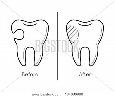 Icons of tooth before and after caries treatment in thin line style. Sick and healthy enamel of teeth. Dental problem. Vector outline simple illustrations isolated on white background.