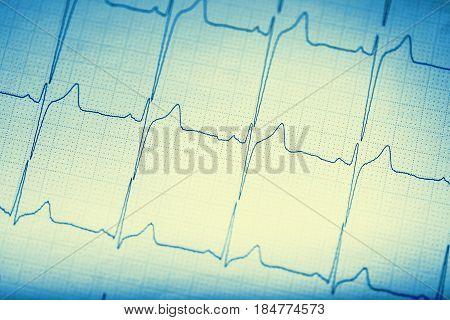 EKG graph. Electrocardiogram ekg ecg. Toned image.
