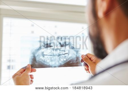 Doctor holding x-ray image from jaw and making diagnostic for oral surgery